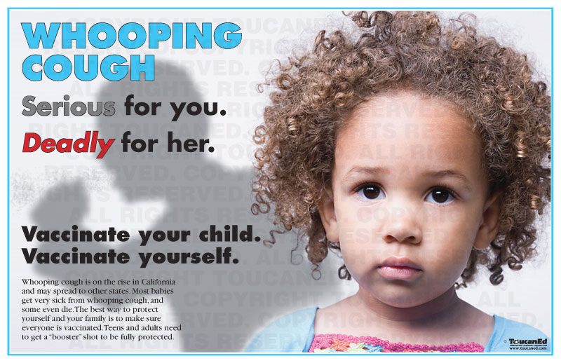 whooping couph Pertussis, also known as whooping cough, is an extremely contagious respiratory tract infection caused by the bacteria bordetella pertussis.